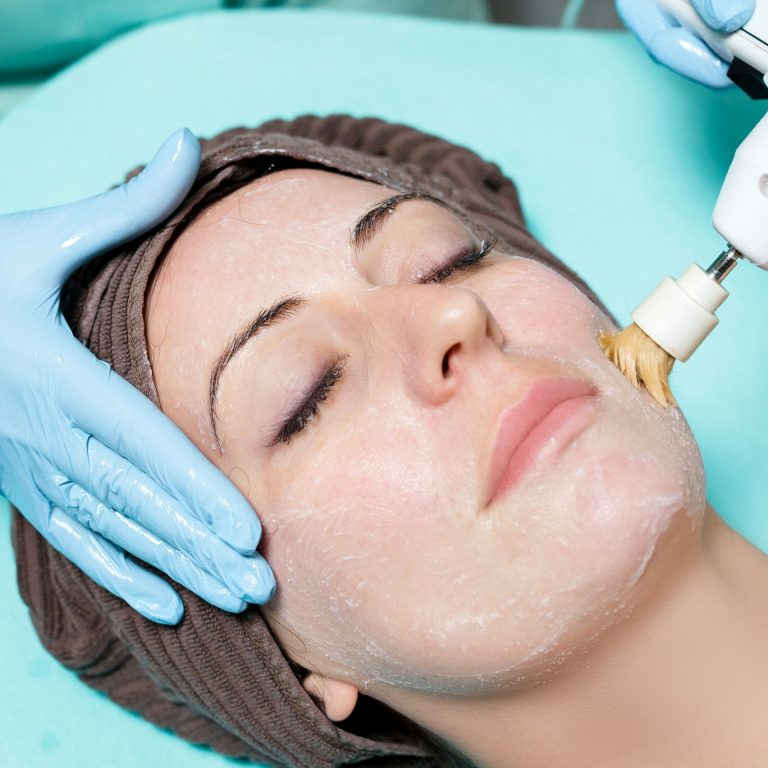 Specialist treating a woman's facial with a diamond peel exfoliating cream.