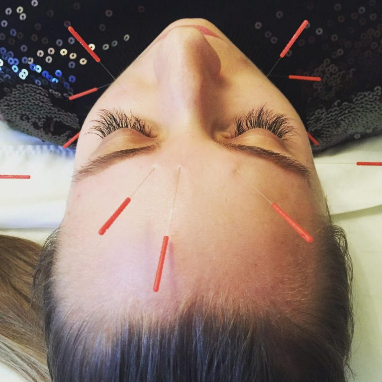 Relaxing woman with acupuncture needles applied to facial points.